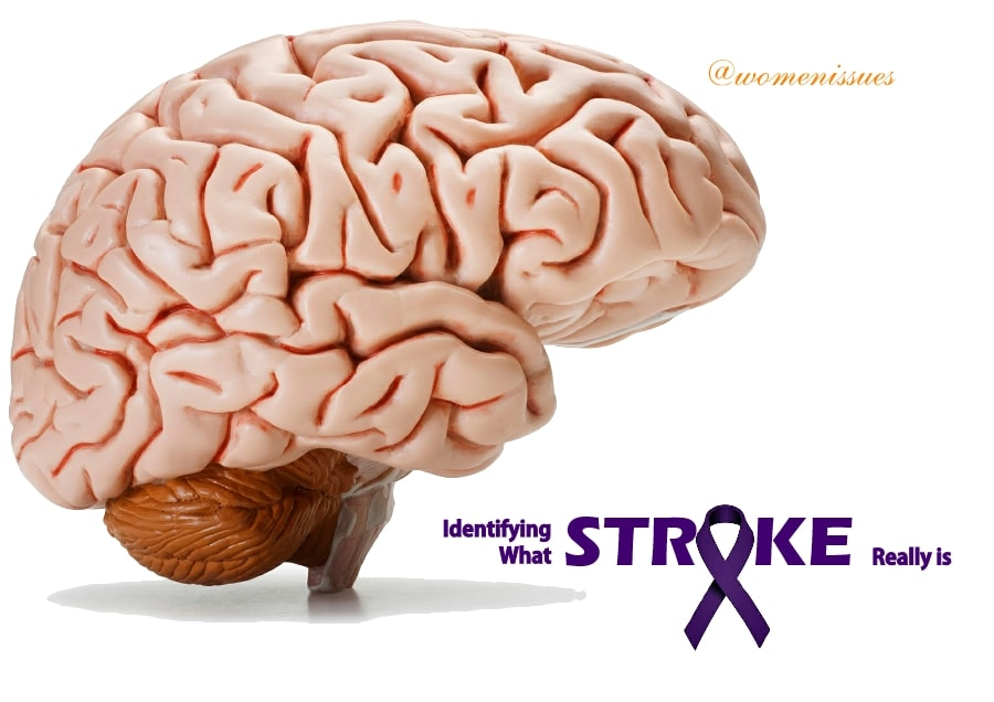 Identifying What Stroke Really is